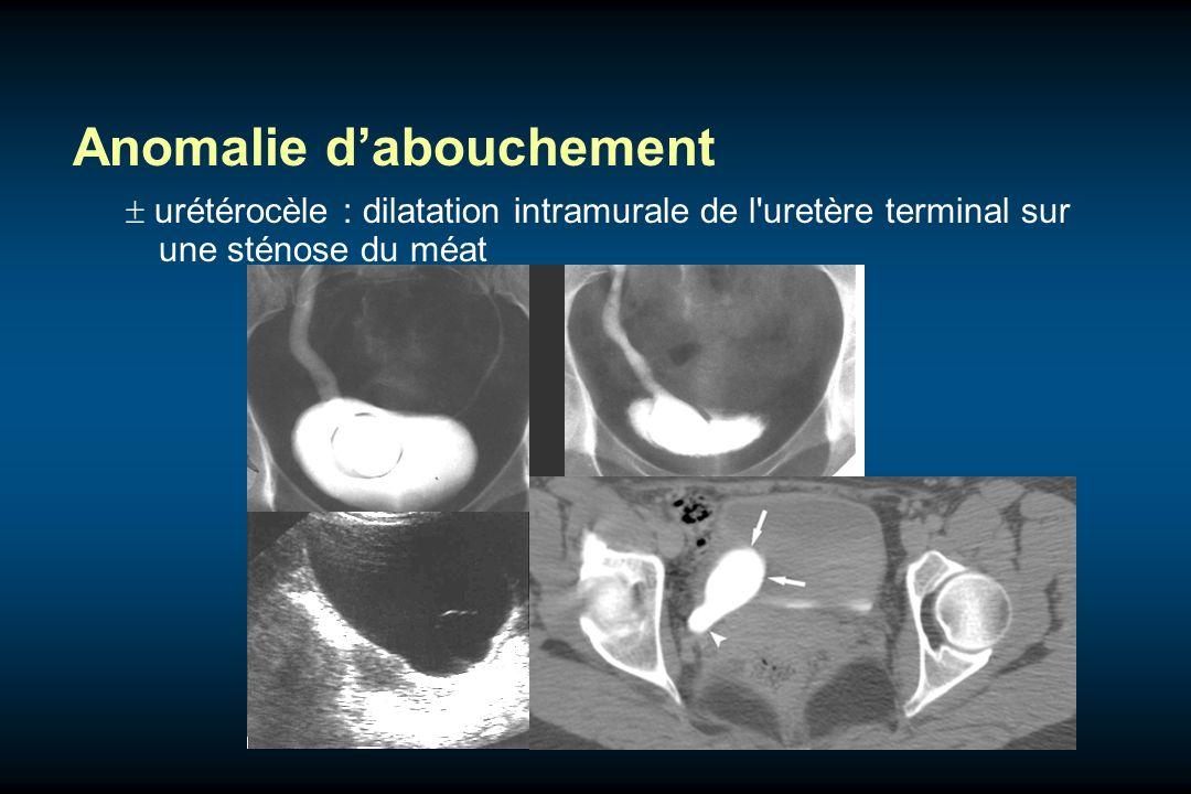 Anomalie dabouchement urétérocèle : dilatation intramurale de l'uretère terminal sur une sténose du méat