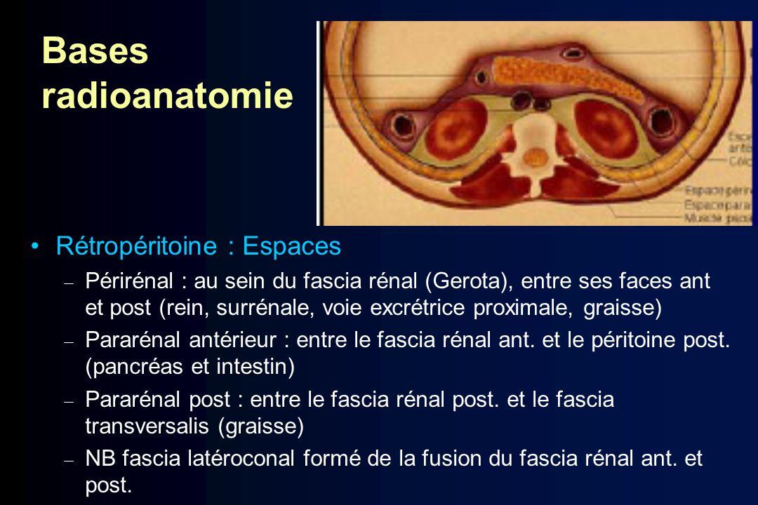 Bases radioanatomie Rétropéritoine : Espaces Périrénal : au sein du fascia rénal (Gerota), entre ses faces ant et post (rein, surrénale, voie excrétri