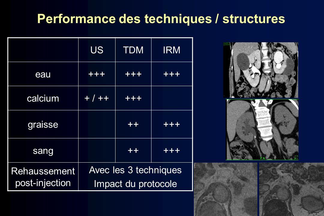Performance des techniques / structures USTDMIRM eau+++ calcium+ / +++++ graisse+++++ sang+++++ Rehaussement post-injection Avec les 3 techniques Impa