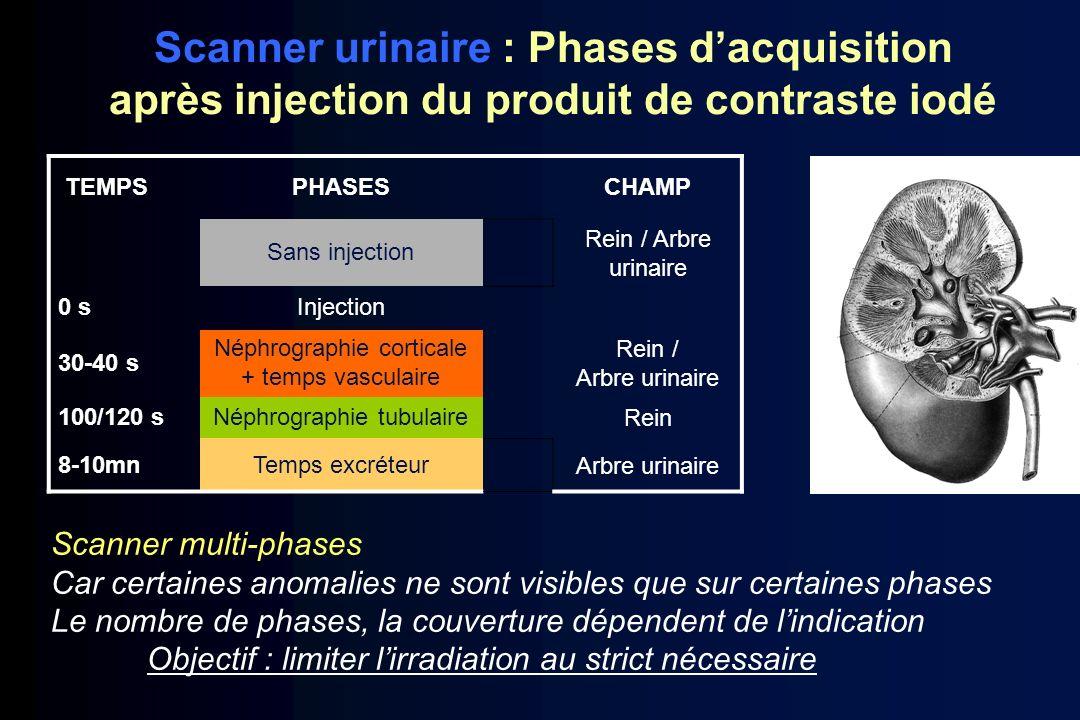 Scanner urinaire : Phases dacquisition après injection du produit de contraste iodé Scanner multi-phases Car certaines anomalies ne sont visibles que