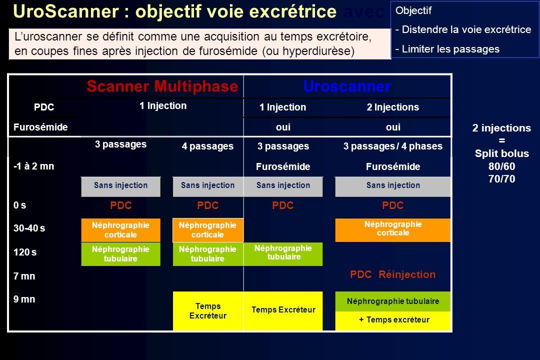 UroScanner : objectif voie excrétrice avec hyperdiurèse Scanner Multiphase Uroscanner PDC 1 Injection 2 Injections Furosémideoui 3 passages 4 passages
