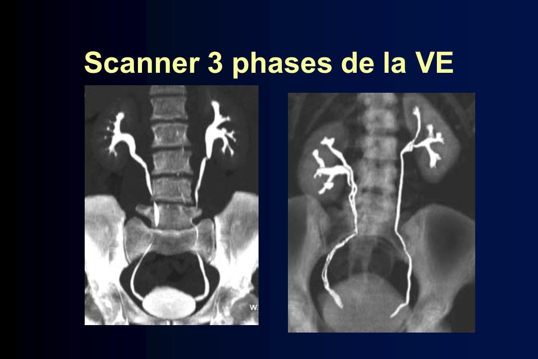 Scanner 3 phases de la VE