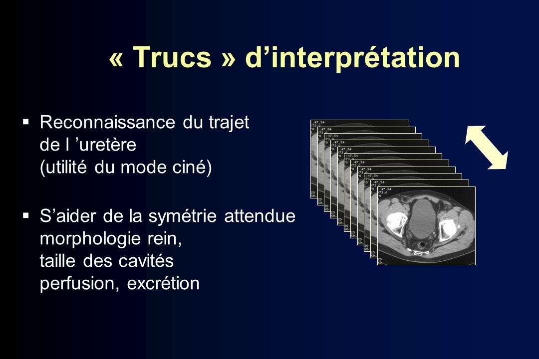 « Trucs » dinterprétation Reconnaissance du trajet de l uretère (utilité du mode ciné) Saider de la symétrie attendue morphologie rein, taille des cav