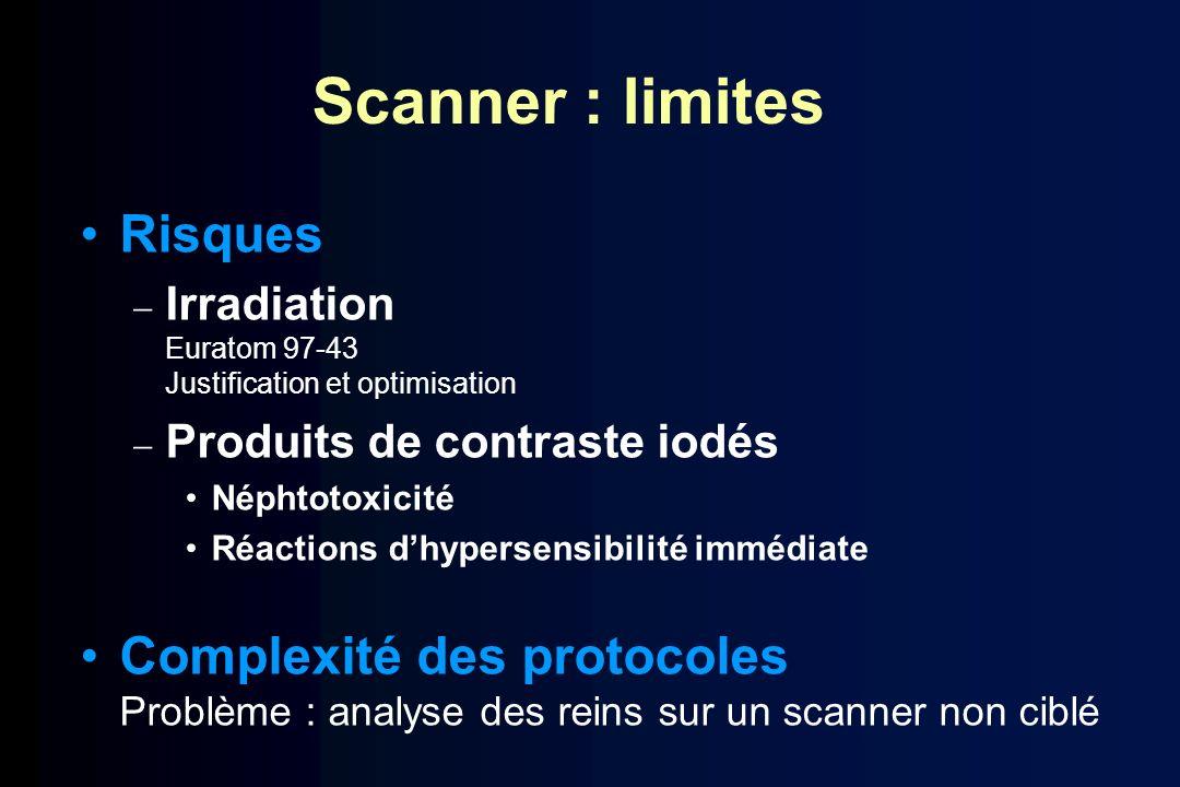Scanner : limites Risques Irradiation Euratom 97-43 Justification et optimisation Produits de contraste iodés Néphtotoxicité Réactions dhypersensibili