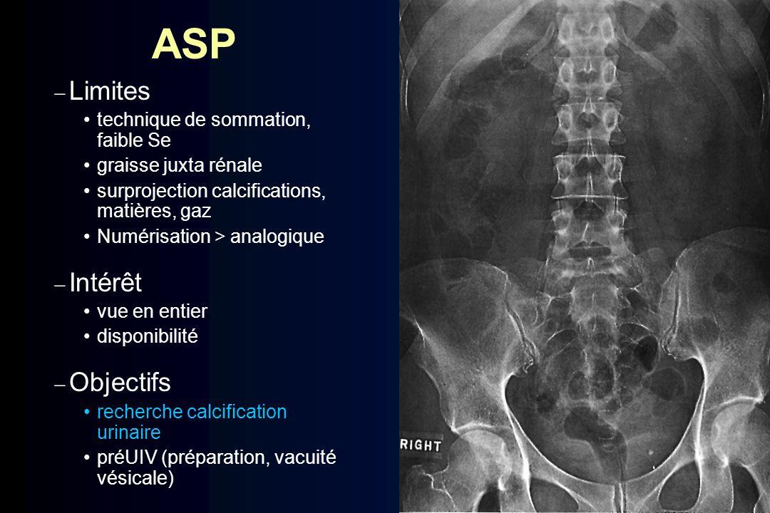 ASP Limites technique de sommation, faible Se graisse juxta rénale surprojection calcifications, matières, gaz Numérisation > analogique Intérêt vue e