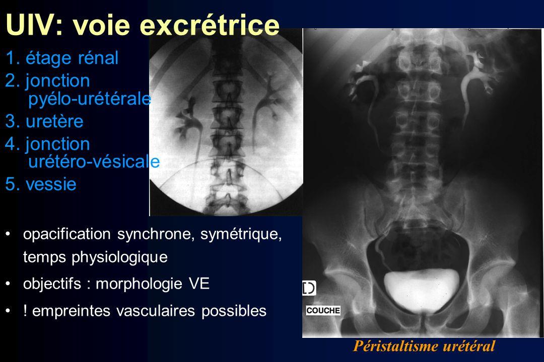 opacification synchrone, symétrique, temps physiologique objectifs : morphologie VE ! empreintes vasculaires possibles Péristaltisme urétéral 1. étage