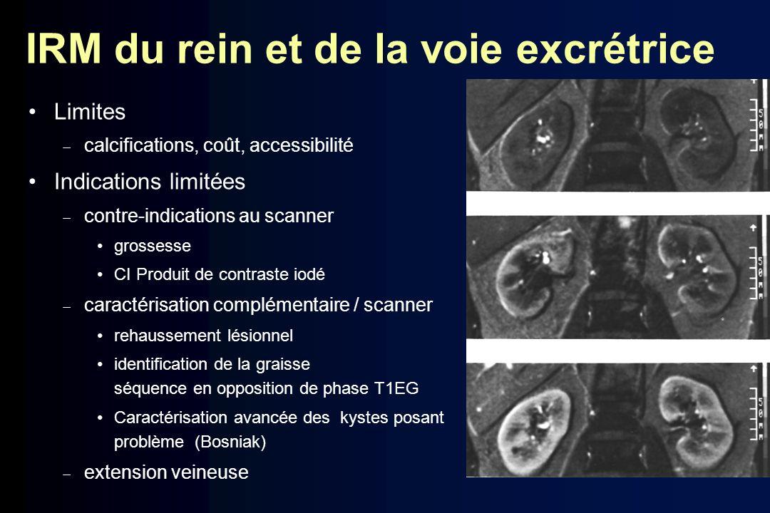 IRM du rein et de la voie excrétrice Limites calcifications, coût, accessibilité Indications limitées contre-indications au scanner grossesse CI Produ