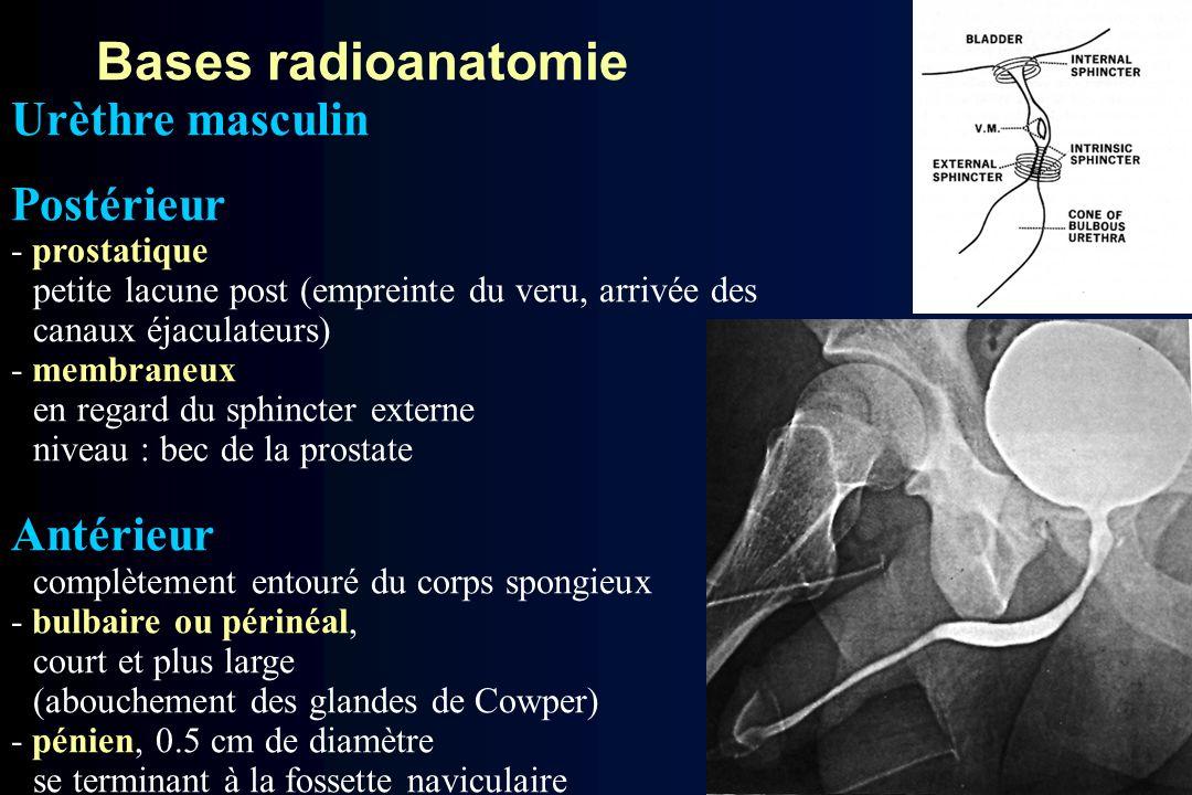Urèthre masculin Postérieur - prostatique petite lacune post (empreinte du veru, arrivée des canaux éjaculateurs) - membraneux en regard du sphincter