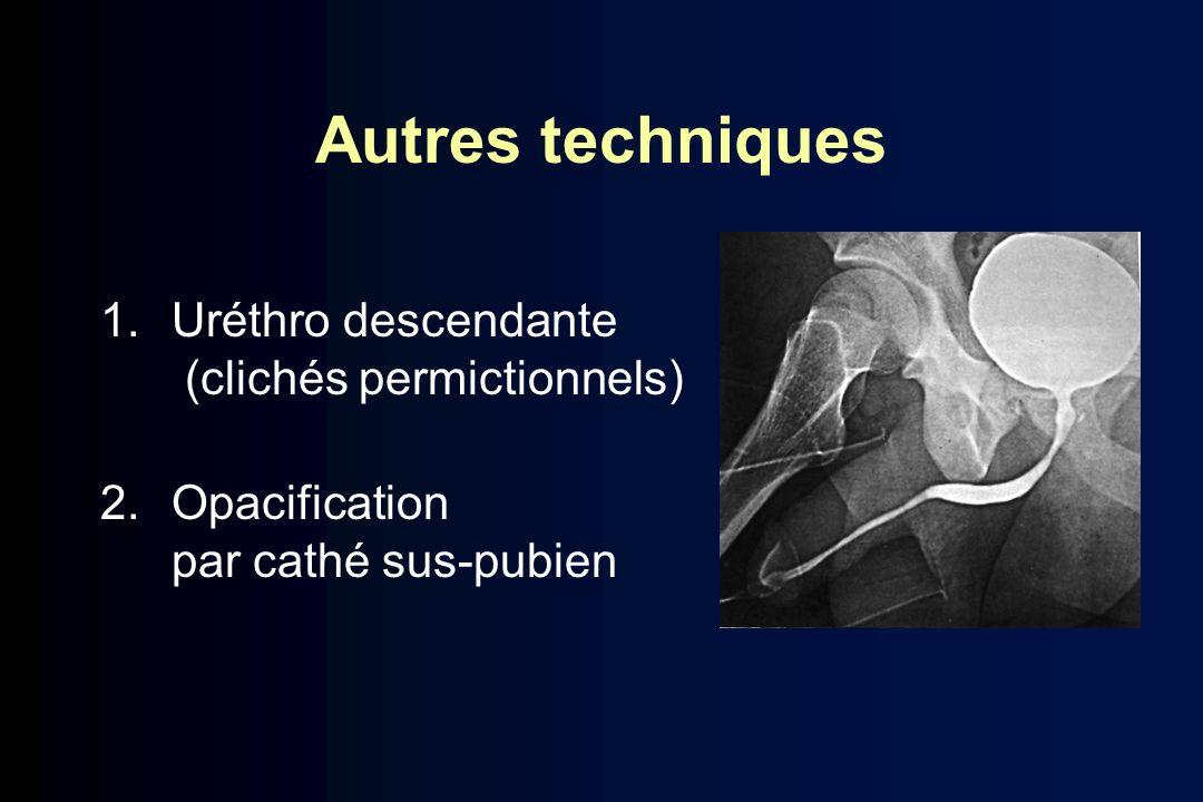 Autres techniques 1.Uréthro descendante (clichés permictionnels) 2.Opacification par cathé sus-pubien
