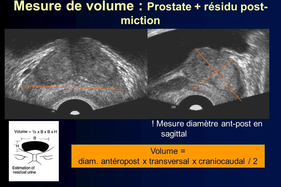Mesure de volume : Prostate + résidu post- miction ! Mesure diamètre ant-post en sagittal Volume = diam. antéropost x transversal x craniocaudal / 2
