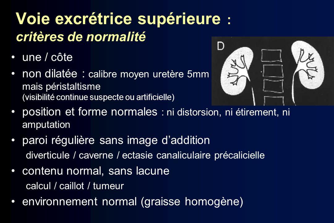 Voie excrétrice supérieure : critères de normalité une / côte non dilatée : calibre moyen uretère 5mm mais péristaltisme (visibilité continue suspecte