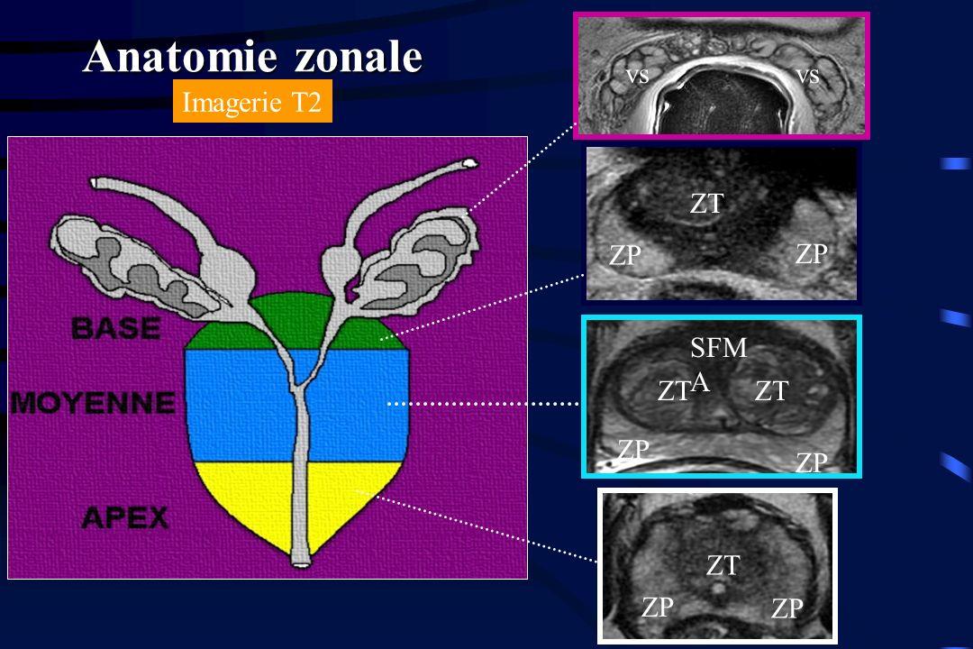 ZT ZP vs ZP ZT Anatomie zonale SFM A ZT Imagerie T2