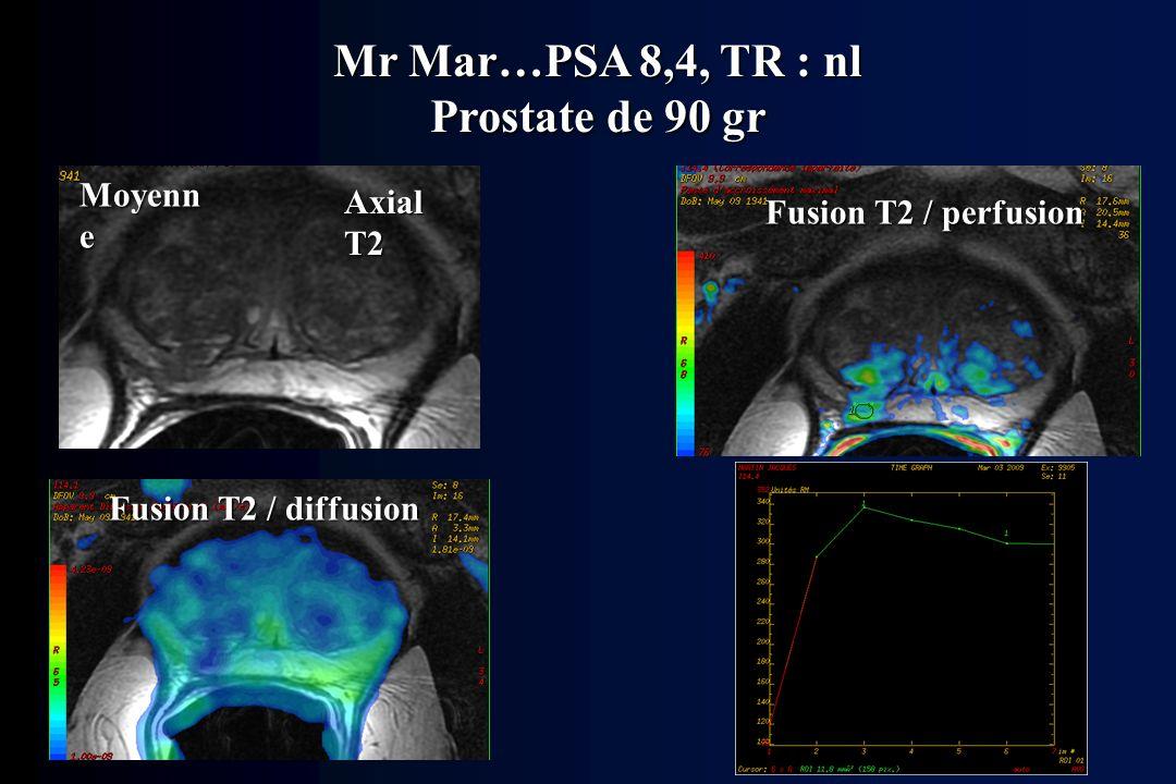 Mr Mar…PSA 8,4, TR : nl Prostate de 90 gr Axial T2 Fusion T2 / diffusion Fusion T2 / perfusion Moyenn e