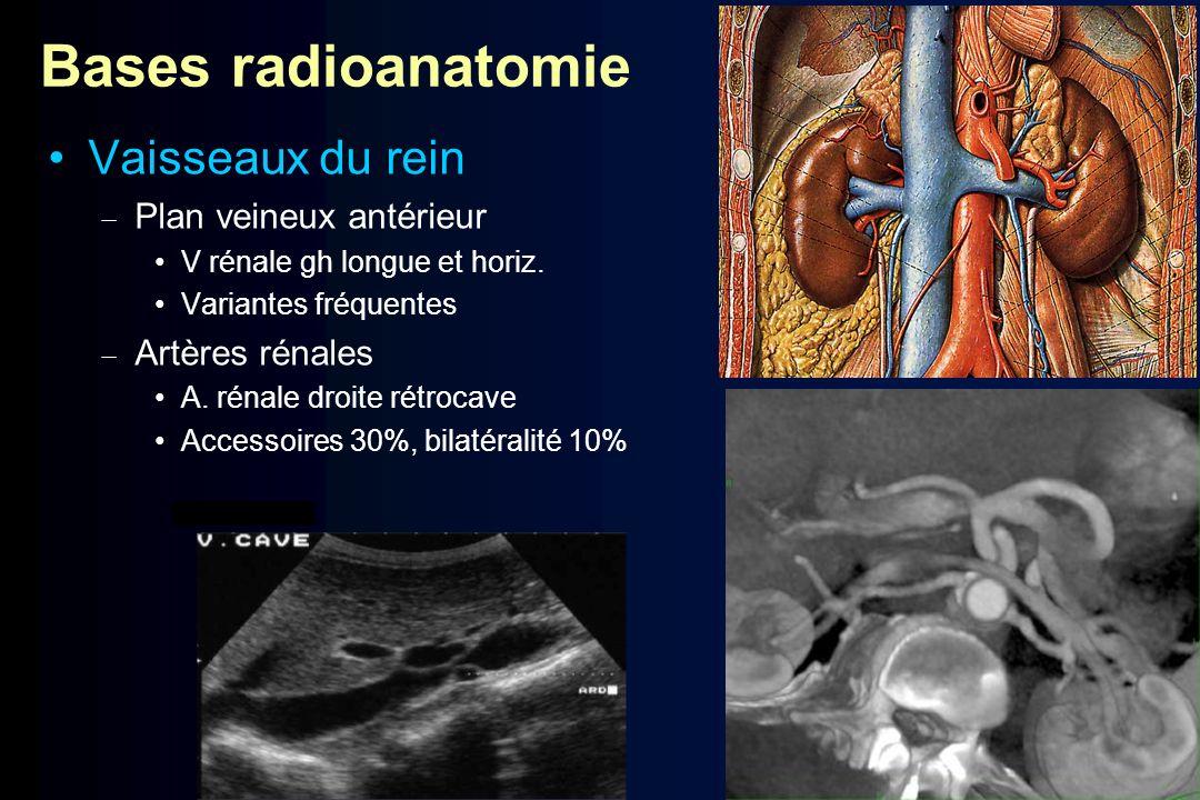 Bases radioanatomie Vaisseaux du rein Plan veineux antérieur V rénale gh longue et horiz. Variantes fréquentes Artères rénales A. rénale droite rétroc