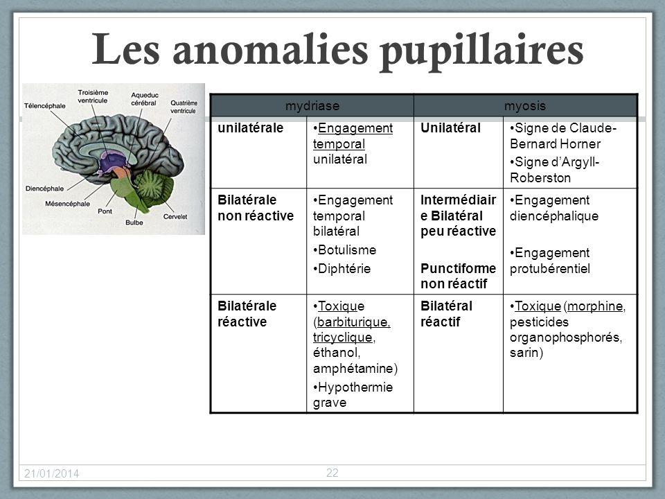 Les anomalies pupillaires 21/01/2014 22 mydriasemyosis unilatéraleEngagement temporal unilatéral UnilatéralSigne de Claude- Bernard Horner Signe dArgy