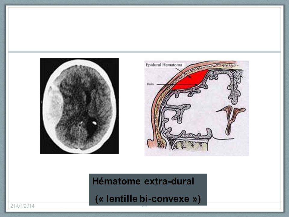 21/01/2014 28 Hématome extra-dural (« lentille bi-convexe »)
