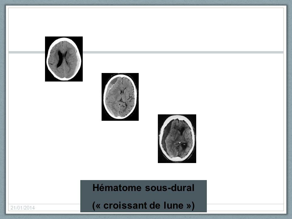 21/01/2014 29 Hématome sous-dural (« croissant de lune »)