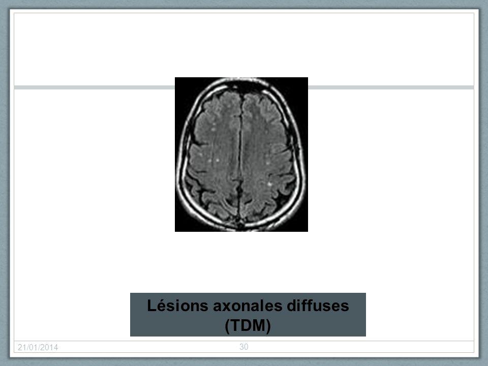 21/01/2014 30 Lésions axonales diffuses (TDM)