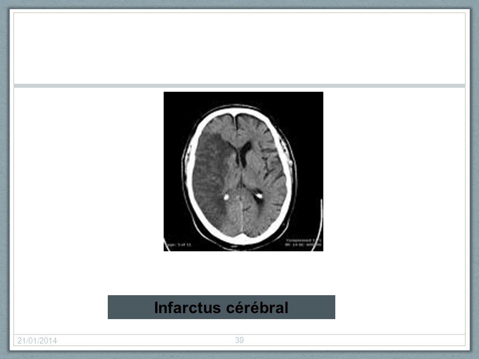 21/01/2014 39 Infarctus cérébral