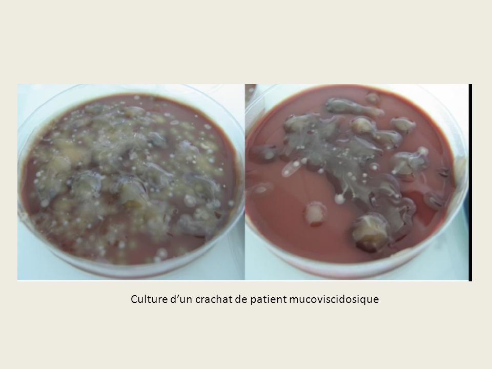 Culture dun crachat de patient mucoviscidosique