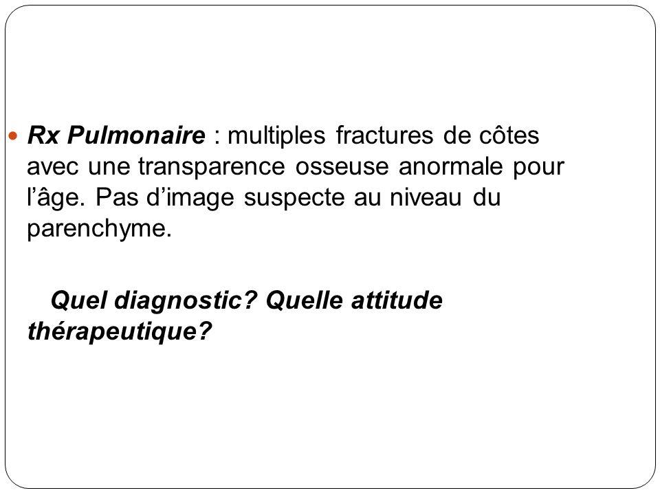 Rx Pulmonaire : multiples fractures de côtes avec une transparence osseuse anormale pour lâge. Pas dimage suspecte au niveau du parenchyme. Quel diagn