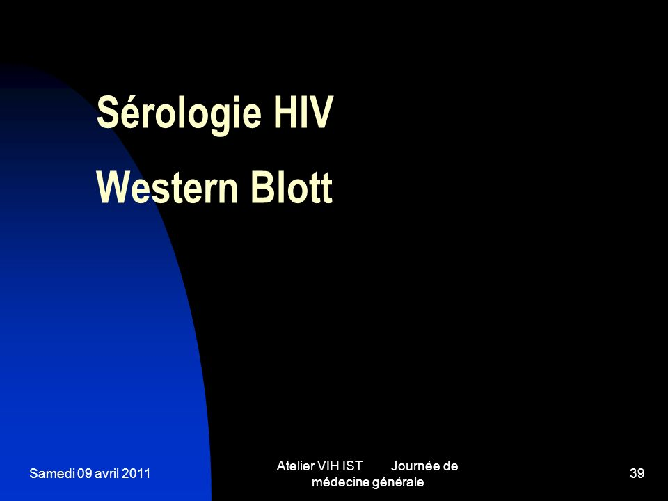 Samedi 09 avril 2011 Atelier VIH IST Journée de médecine générale 39 Sérologie HIV Western Blott