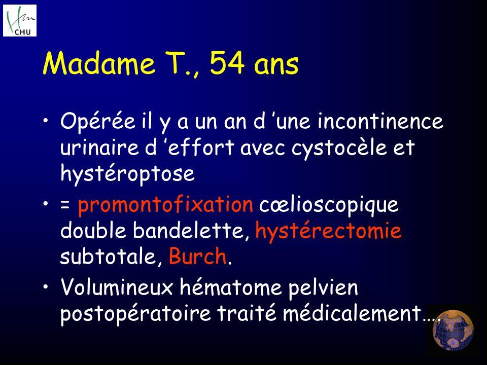 Madame T., 54 ans Opérée il y a un an d une incontinence urinaire d effort avec cystocèle et hystéroptose = promontofixation cœlioscopique double band