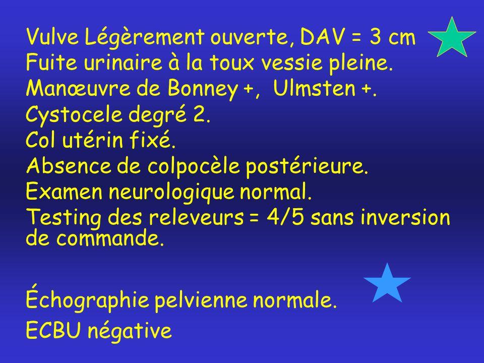 Vulve Légèrement ouverte, DAV = 3 cm Fuite urinaire à la toux vessie pleine. Manœuvre de Bonney +, Ulmsten +. Cystocele degré 2. Col utérin fixé. Abse