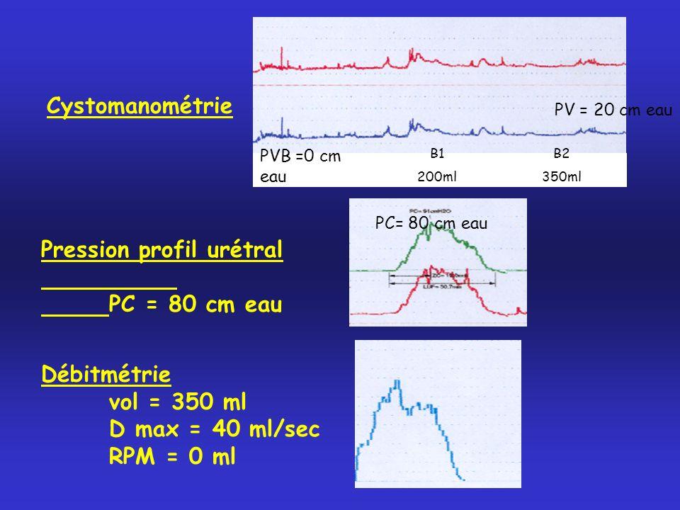 Cystomanométrie B1 200ml B2 350ml PVB =0 cm eau PV = 20 cm eau Pression profil urétral PC = 80 cm eau Débitmétrie vol = 350 ml D max = 40 ml/sec RPM =