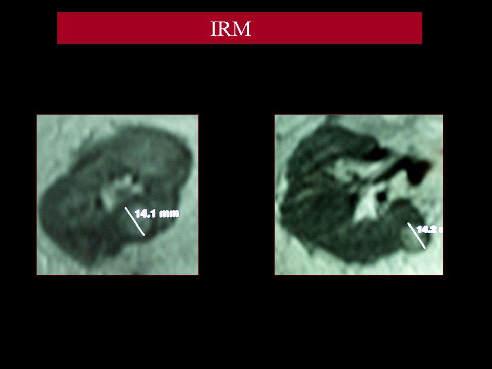 Situation -2 localisations tumorales sur un rein unique droit: -10mm rétropédiculaire sur lèvre postérieure.