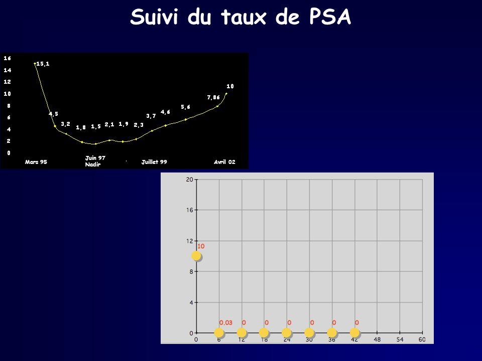 Suivi du taux de PSA Mars 95 Juin 97 Nadir Juillet 99Avril 02