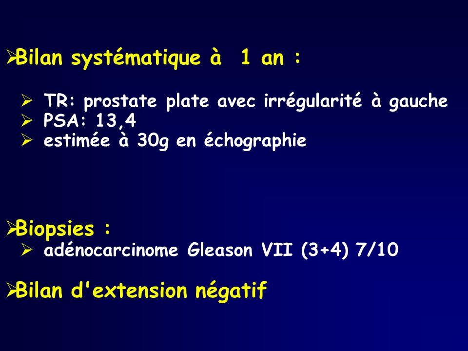 Bilan systématique à 1 an : TR: prostate plate avec irrégularité à gauche PSA: 13,4 estimée à 30g en échographie Biopsies : adénocarcinome Gleason VII