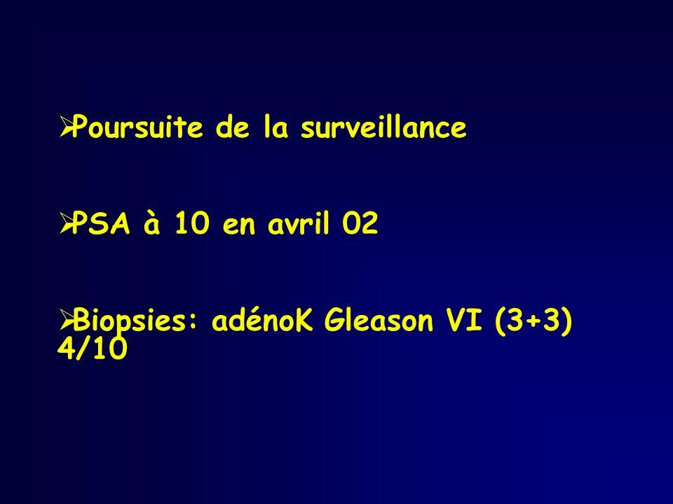 Poursuite de la surveillance PSA à 10 en avril 02 Biopsies: adénoK Gleason VI (3+3) 4/10