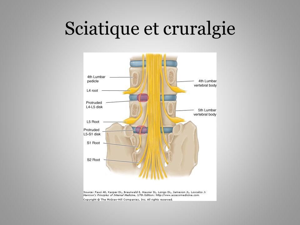 Sciatique et cruralgie