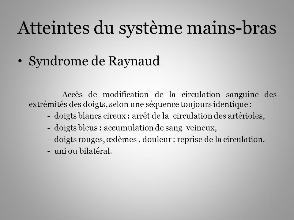 Atteintes du système mains-bras Syndrome de Raynaud - Accès de modification de la circulation sanguine des extrémités des doigts, selon une séquence t