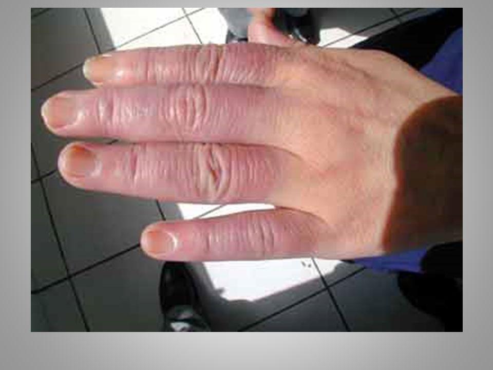 Maladies professionnelles Sciatique et cruralgies par hernie discale confirmée radiologiquement : Tableau N° 97 des MP.
