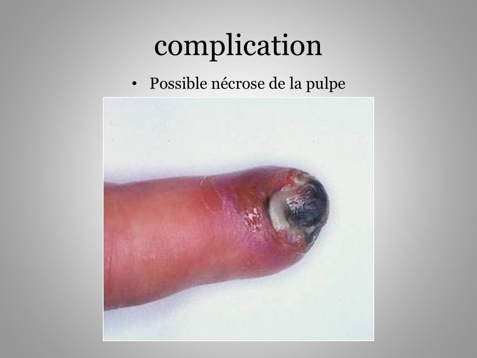 complication Possible nécrose de la pulpe
