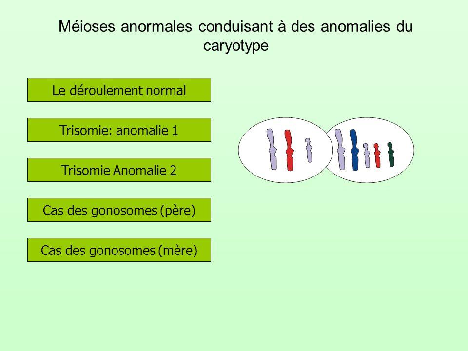 Méioses anormales conduisant à des anomalies du caryotype Trisomie: anomalie 1 Le déroulement normal Trisomie Anomalie 2 Cas des gonosomes (père) Cas