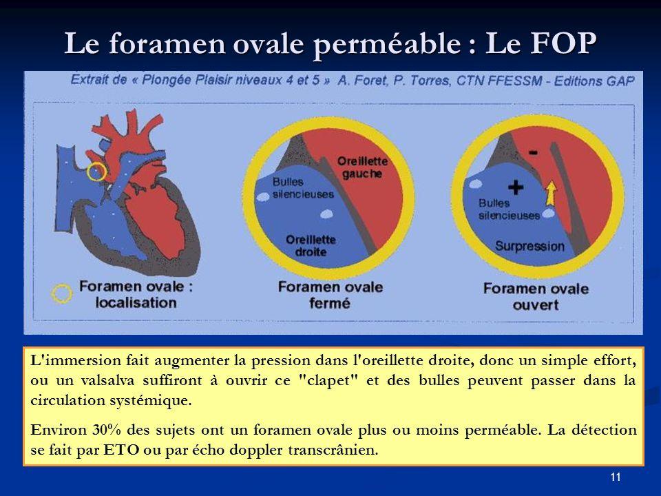 11 Le foramen ovale perméable : Le FOP L'immersion fait augmenter la pression dans l'oreillette droite, donc un simple effort, ou un valsalva suffiron