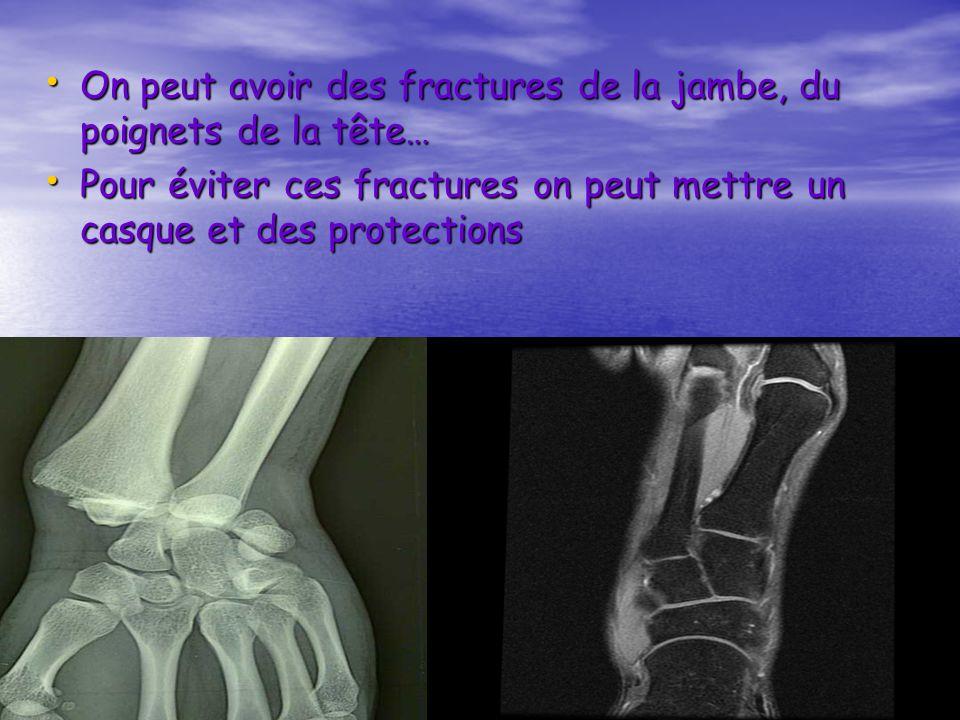On peut avoir des fractures de la jambe, du poignets de la tête… On peut avoir des fractures de la jambe, du poignets de la tête… Pour éviter ces frac