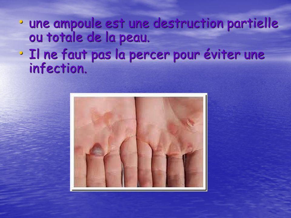 une ampoule est une destruction partielle ou totale de la peau. une ampoule est une destruction partielle ou totale de la peau. Il ne faut pas la perc