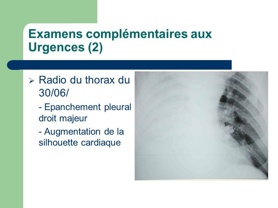 Examens complémentaires aux Urgences (2) Radio du thorax du 30/06/ - Epanchement pleural droit majeur - Augmentation de la silhouette cardiaque