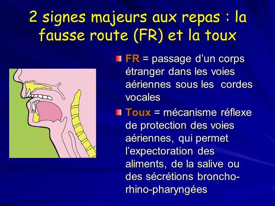 2 signes majeurs aux repas : la fausse route (FR) et la toux FR = passage dun corps étranger dans les voies aériennes sous les cordes vocales Toux = mécanisme réflexe de protection des voies aériennes, qui permet lexpectoration des aliments, de la salive ou des sécrétions broncho- rhino-pharyngées