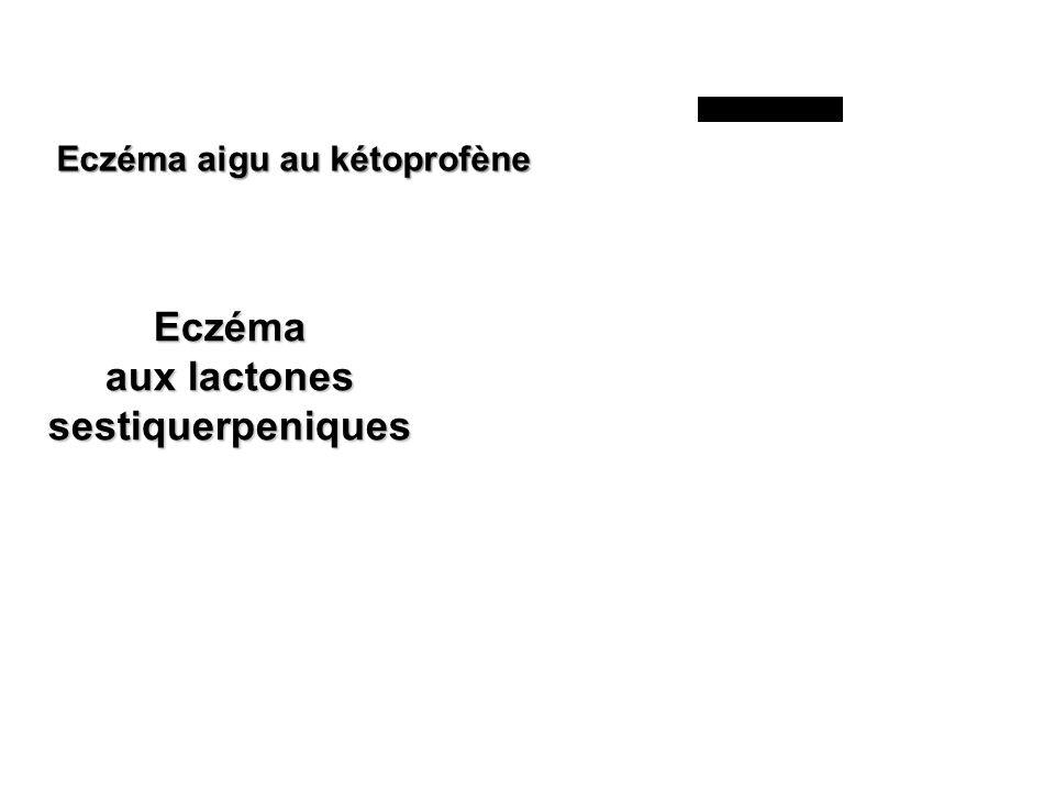Eczéma aux lactones sestiquerpeniques Eczéma aigu au kétoprofène