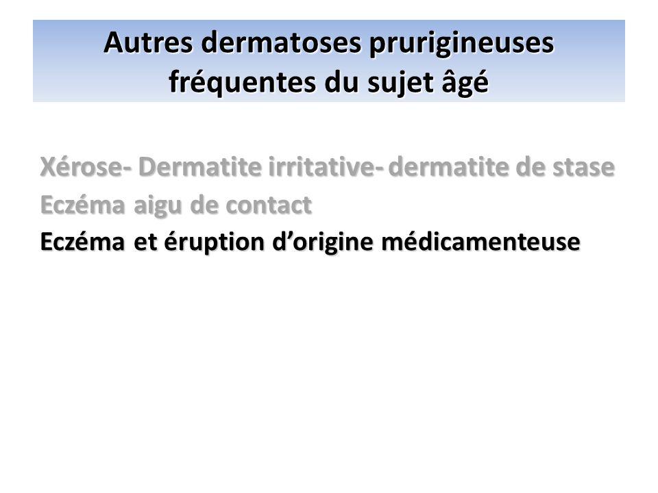 Autres dermatoses prurigineuses fréquentes du sujet âgé Xérose- Dermatite irritative- dermatite de stase Eczéma aigu de contact Eczéma et éruption dor