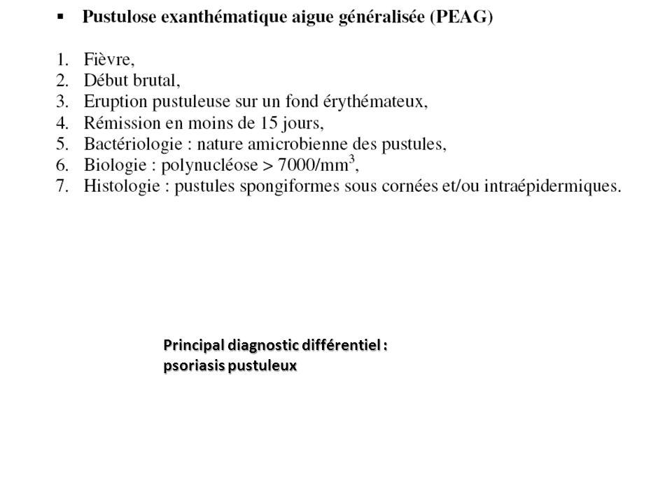 Principal diagnostic différentiel : psoriasis pustuleux