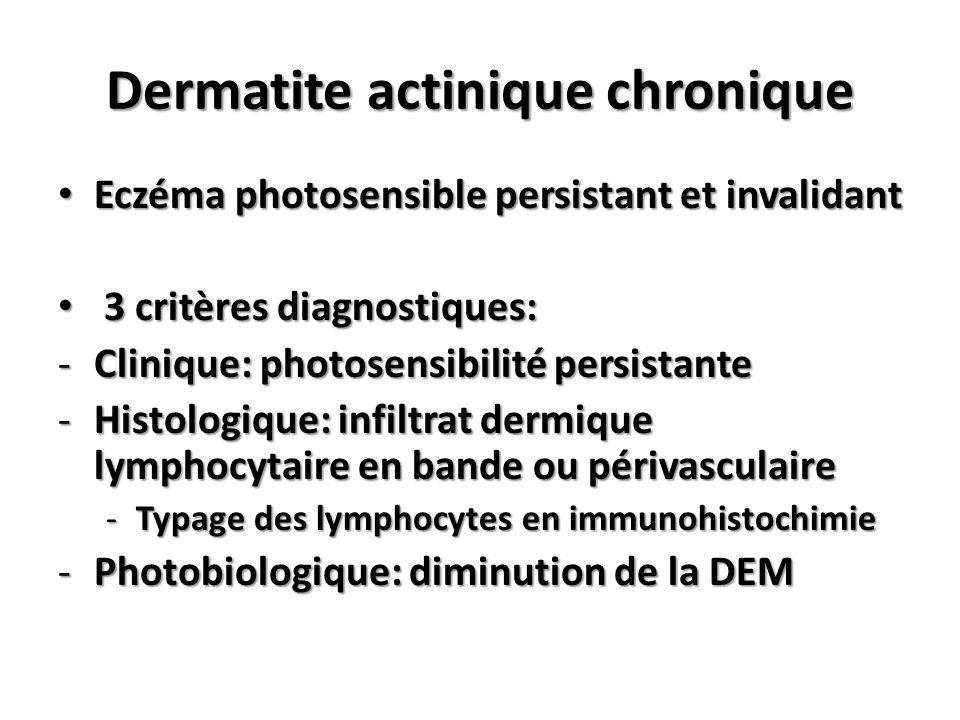 Eczéma photosensible persistant et invalidant Eczéma photosensible persistant et invalidant 3 critères diagnostiques: 3 critères diagnostiques: -Clini