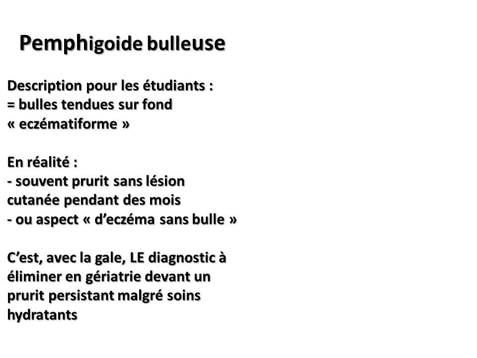 Pemph igoide bulle use Description pour les étudiants : = bulles tendues sur fond « eczématiforme » En réalité : - souvent prurit sans lésion cutanée