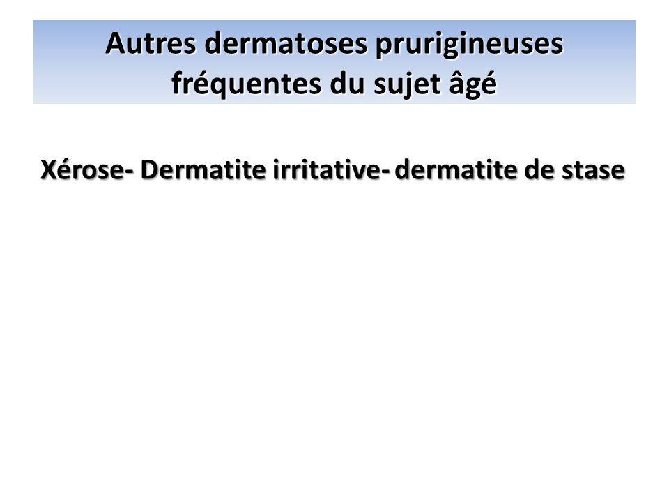 Autres dermatoses prurigineuses fréquentes du sujet âgé Xérose- Dermatite irritative- dermatite de stase Eczéma et dermatoses apparentées Eczéma aigu
