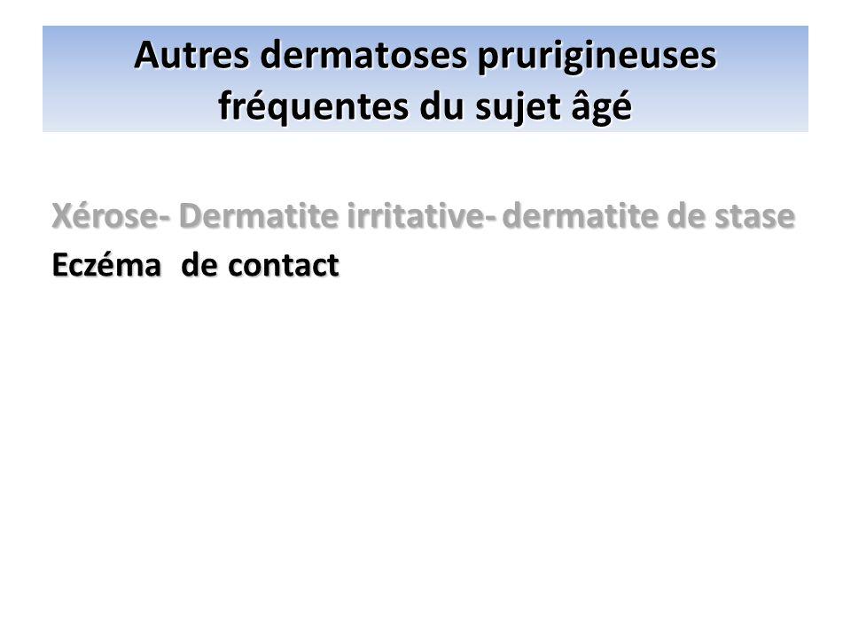 Autres dermatoses prurigineuses fréquentes du sujet âgé Xérose- Dermatite irritative- dermatite de stase Eczéma de contact